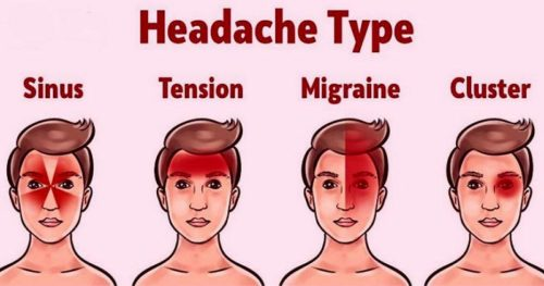 Here's How Your Headache Reveals What Is Wrong With Your Health