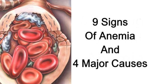 9 Signs Of Anemia And 4 Major Causes