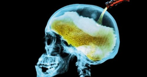 Here's What Alcohol Does To Your Brain