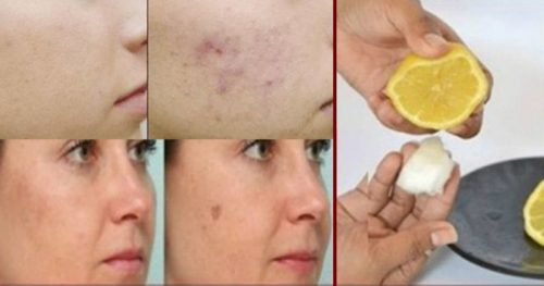 How To Eliminate Dark Spots And Clear Scars With These 3 Home Natural Remedies!