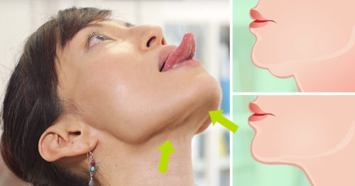 How To Lose Double Chin Without Surgery, Injections Or Pills