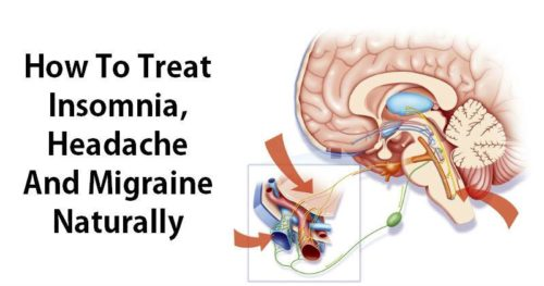 How To Treat Insomnia, Headache And Migraine Naturally