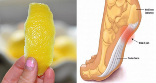 How To Use Lemon Peels To Relieve Joint Pain