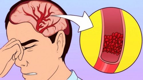 Start Taking These Vitamins To Treat Insomnia And Headaches Without Medications