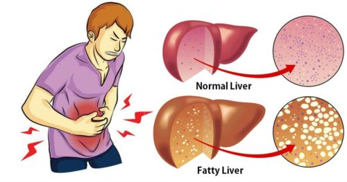 How To Treat Liver Problems, Fatty Liver And Stomach Pain Naturally
