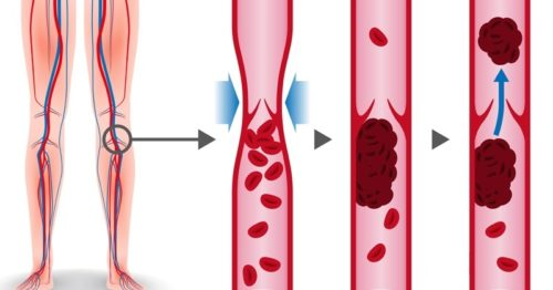 What Causes Deep Vein Thrombosis & 5 Natural Ways To Treat It
