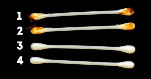 Here's What Your Earwax Says About Your Health