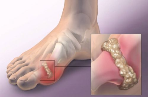 Tips To Remove Gout And Eliminate Joint Pain ( Crystal And Uric Acid)
