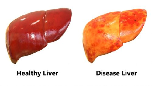 Doctors Claim: How To Eliminate Liver Fat In A Few Days