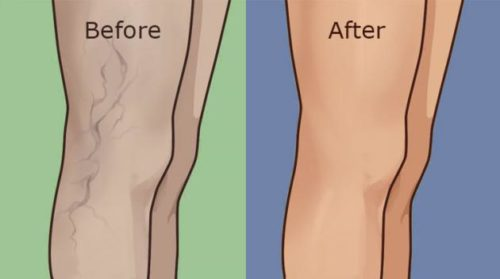 5 Ways To Treat Varicose Veins In A Completely Natural Way