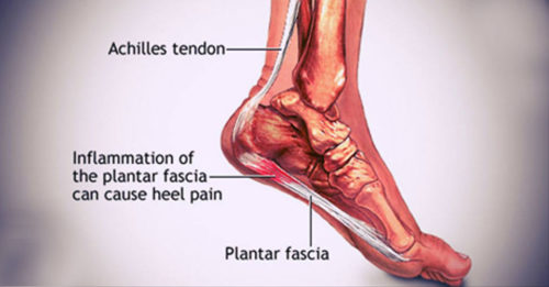 Here's How To Cure Heal Pain And Plantar Fasciitis Naturally