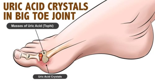 How To Remove Uric Acid Crystallization From Your Body And Prevent Joint Pain And Gout