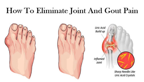How To Eliminate Joint And Gout Pain (Uric Acid) Naturally